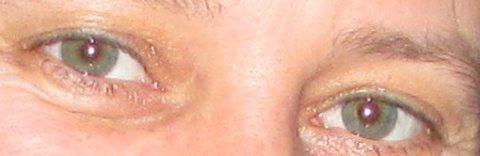 FOTKA - vysmáté oči