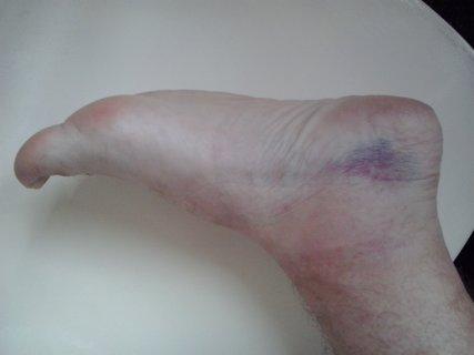 FOTKA - Takhle dopadl můj kotník po fotbale. Vidíte ho? Já ne