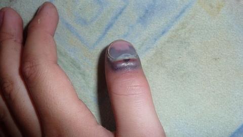 FOTKA - zlomený paleček