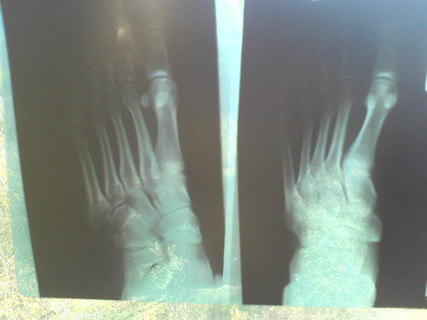 FOTKA - rentgen nohy2